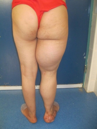 Lipoma Causes Symptoms Pictures Treatment Ehealthstar